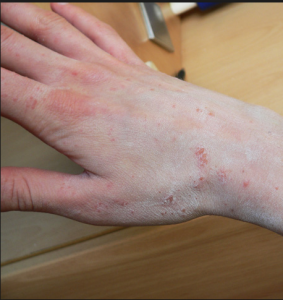 what is Scabies