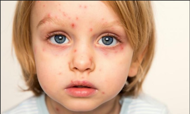 What is Chickenpox? it's Symptoms, Treatments and Prevention